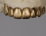 Figure 12  The use of gold or silver powder helps show tooth texture and defines the shape.