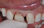 Figure 4  The patient's natural tooth was hanging by a small piece of tooth root.