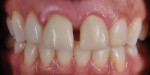 Figure 11  One week post-op illustrates a nice tissue response, providing the dentist and technician with a positive restorative foundation.