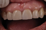Figure 16  Once cemented, the junction must be smoothed intraorally by the dentist to have a smooth transition from restoration to tooth.