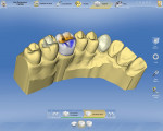 Figure 15  Sirona Dental Systems presents a completely overhauled software platform for its chairside CEREC® and laboratory inLab® CAD/CAM systems that features a re-designed, user-intuitive interface to help even novices to operate the system.