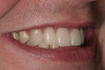 Figure 24  A left-side view of the patient's postoperative smile.