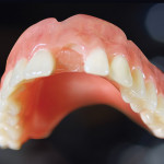 Figure 1  Example of tooth breakage and no acrylic adhesion—the lack of adhesion most likely caused the tooth to fail.