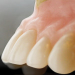 Figure 2  A fully contoured denture wax-up with adequate bulk at the gingival crest to provide strength to help retain the teeth in the denture.