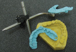 Figure 1  Properly articulated models will be set on a Bonwill-friendly semi-adjustable articulator using a facebow.