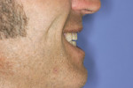 Figure 2  Lateral smile preoperative.