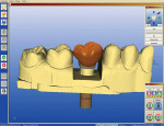 Figure 6  Reduce the abutment.