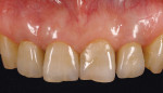 Figure 7  Case 1 completion. The composite resin restoration on the remaining incisor was planned for later completion.