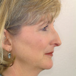 Figure 15  Her profile was retrusive with slightly inadequate lip projection, a low nasal tip, and a nasal dorsal hump.