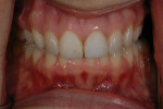Figure 3  Retracted view of the patient's diastema.