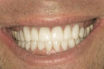 Figure 16  Final lateral smile.