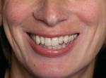 Figure 17  Frontal view of the patient before veneer placement shows the excessive reveal of the mesial aspect of teeth Nos. 6 and 11 and the wide incisal embrasures.