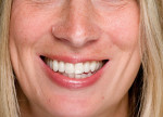 Figure 19  After conservative cosmetic dentistry, the patient's concerns were met and her expectations were fulfilled.