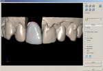 Figure 4  The full-contour design was completed to mimic the contours of tooth No. 9.