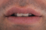Figure 36  Try-in of the added correction to achieve the desired mesial length.