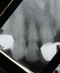 Figure 1  Preoperative radiographs show the splinted crowns, a large mesial bony defect on tooth No. 9, and failing mesial-lingual composite on tooth No. 10 with overhang and open contact.