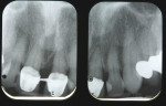 Figure 2  Preoperative radiographs show the splinted crowns, a large mesial bony defect on tooth No. 9, and failing mesial-lingual composite on tooth No. 10 with overhang and open contact.
