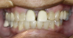 Figure 3  Preoperative photograph shows the diastema between teeth Nos. 8 and 9.