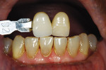 Figure 10  In the laboratory, custom shade photographs were taken. The goal was to match the natural lower anterior teeth and to create a natural blend with teeth Nos. 6 and 11.
