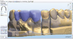 Figure 14  The models were scanned and the zirconia framework was simultaneously designed with the wax overlay.