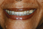 Figure 28  The restorations a week postoperative. The small gingival defect can be seen, as well as the patient's low smile line. The shade match to the lower anteriors and the blending with the upper cupsids were regarded by the patient, dentist,