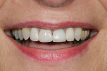 Figure 1   A magnified 1:2 view of the patient's smile shows bilateral disharmonies as the patient smiles with medium lip dynamics.