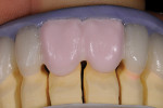 Figure 8  A full build-up with dentin color and silicone index.