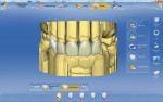 Figure 4  Frontal view of the IPS e.max CAD units on teeth Nos. 6 through 10.