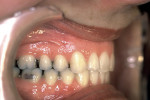 Figure 7  Postretention right buccal view displaying ideal Class I occlusion and stability.