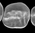 Figure 3B  IPS e.maxCAD fabricated by dentists chairside using a new fast-mill/fast-fire protocol developed by Dr. Paul Child.
