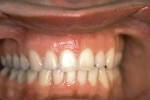 Figure 8  Postretention frontal view of the dentition, displaying ideal Class I occlusion and stability.