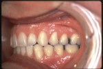 Figure 9  Postretention left buccal view displaying ideal Class I occlusion and stability.
