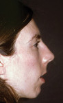 Figure 16  Profile view of patient reveals an imbalance of the soft-tissue drape of the face. The patient has an obtuse nasolabial angle. Note the unesthetic junction of the upper lip to the nose. The patient displays hyperactivity and bulging of the