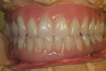 Figure 22  Ivoclar Phonares nanohybrid composite denture teeth—completely reset and waxed onto titanium bars for final full try-in.