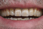 Figure 7  The result after the definitive seating. Appropriate characterizations were added to obtain a harmonious shade match with the adjacent natural teeth and the antagonists. Professional tooth cleaning was planned for a later time.