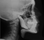 Figure 23  Posttreatment cephalometric radiograph. There is the dramatic improvement in the soft-tissue drape of the face and the balance and proportionality of the posterior facial height in relation to the lower anterior facial height and anterior