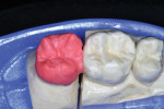 Figure 10   Buccal dentin porcelain was then added.