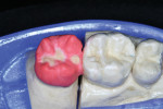 Figure 11  Occlusal modifiers help to create a more natural appearance.