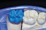 Figure 13  Occlusal/lingual porcelain was applied—maintaining morphology during the process.