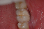 Figure 33  The postoperative porcelain-fused-to-zirconia restoration.