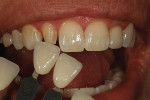 Figure 3  Incisal translucency, calcification, and surface texture was checked.
