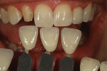 Figure 4  Incisal translucency, calcification, and surface texture was checked.