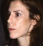 Figure 29  Posttreatment facial balance. Note the improved position of the junction of the nose to the upper lip.