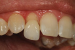 Figure 35  At the final appointment, the author checked to see if the veneer.compared to the adjacent teeth.