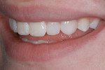 Figure 38  A right and left lateral view of the seated veneers.