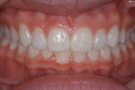 Figure 39  A retracted view of the seated veneers.