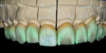 Figure 25  A blend from the gingival to the incisal was created using a combination of Opal 3 and Ti 1.