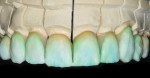 Figure 26  A blend from the gingival to the incisal was created using a combination of Opal 3 and Ti 1.