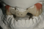 Figure 7  A light-cured composite resin was placed in the gingival areas of the posterior region.