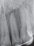 Figure 4  An X-ray of tooth No. 7 that had been re-implanted by the emergency room doctor after being avulsed.